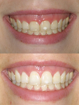 Implant Periodontal Associates NW Services CrownLengthing