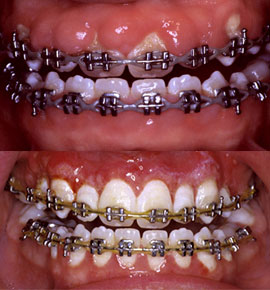Implant Periodontal Associates NW Services Orthodontic